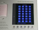 Draagbare 3-kanaal LCD ECG van de Kleur Machine - Stella