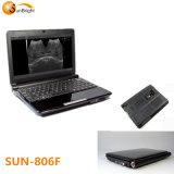 Специальное предложение! Sun-806f портативных медицинских ультразвуковых исследований -- ультразвуковой доплеровский утвержденном CE