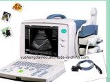 Modus-Geräten-Ultraschallsystems-Ultraschall-Scanner Ceranerkanntes des Portable-B