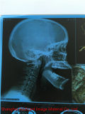 Пленка сини рентгеновского снимка дюйма 8*10 медицинская