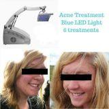 Equipamento leve da beleza do rejuvenescimento da pele do diodo emissor de luz Phototherapy de PDT/LED