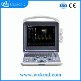 Doppler couleur portable Cansonic Ultrasounic Système de diagnostic