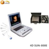 Sun-800e 3D4D 4D numérique USG plein prix d'échographie portable portable 4D'échographe