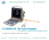 Totalmente digital portátil ultra-sonografia transvaginal com Doppler colorido Yj-U60plus