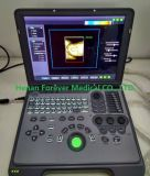 ISO&Ce genehmigte preiswerte 3D/4D Cw Funktion  Herzlaptop-Ultraschall-Scanner (YJ-C60)