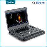 Scanner numérique complète l'échographie Doppler couleur Sonoscape X3