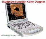 3D/4D Cw Funktions-Herzlaptop-Farben-Doppler-Ultraschall-Scanner (YJ-C60PLUS)