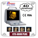 Sistema de Diagnóstico por Ultrasonidos, 4D en tiempo real, el sistema de imágenes 3D portátil de ultrasonido, equipos médicos de la máquina de ultrasonido portátil Doppler,