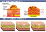 Hifu ultrassom máquina para remoção dos vincos Face apertar a pele e perda de peso