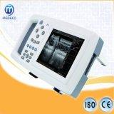 L'équipement médical moi-600 Scanner portable B Mode scanner à ultrasons médicaux