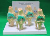 解剖モデル、X-Y9g 3部カラー分離の骨(3本の取り外し可能な歯)