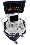 Colore cardiovascolare Doppler, macchine vascolari cardiache di eco di Sonoscape S40 di ultrasuono