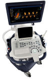Sonoscape S40 Echo-kardiovaskuläre Farbe Doppler, Herzgefäßultraschall-Maschinen