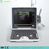 L'équipement médical portable échographie Doppler couleur avec scanner numérique