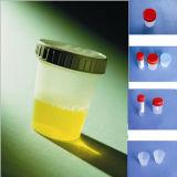 Contenitore a gettare dell'esemplare di urina 120ml