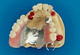 Terminación de la placa del Co-Cr con las conexiones preciosas hechas en el laboratorio dental de China