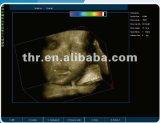 4D de la machine d'échographie Doppler couleur