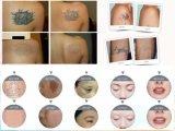 Retiro de la muñeca del negro de la máquina del IPL/retiro de los puntos/retiro de la arruga de Rejunvenation de la piel