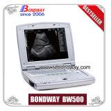 Equipos médicos, máquina de imágenes de ultrasonido embarazo Ultrasonido Transvaginal,, la Sonda Vaginal, Obstetricia, Ginecología, Urología, Cardiología, bajo precio