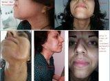 Rimozione professionale diplomata FDA medica dei capelli del laser del diodo della strumentazione 808nm del salone del Ce
