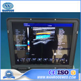 Geräten-bewegliche Schwangerschaft-Farben-Doppler-Ultraschall-Scanner-Maschine des Krankenhaus-Usc60
