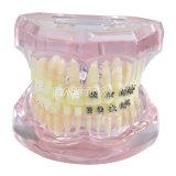 Modello dentale dei denti con metallo mezzo e la parentesi di ceramica