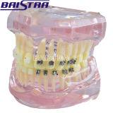 Verkauf wohler Produkt Halb-Metallc$halb-keramischer Unterrichts-zahnmedizinische Zähne vorbildliches Zyr-3003