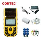 ECG de Contec80un software de sincronización de ECG+Cable USB interfaz multilingüe e informe de ECG Portátil