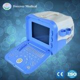 Ordinateur portable numérique complet du scanner à ultrasons à usage vétérinaire pour animaux ou à usage humain (YJ-U100A)