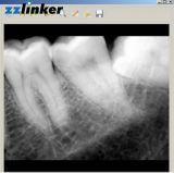Цена датчика рентгеновского снимка Lk-C64 Кореи да Biotech зубоврачебное цифров Rvg