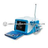 Ecógrafo digital portátil con Linux Embedded