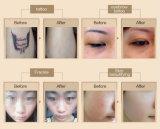 Strumentazione di rimozione del tatuaggio del laser da 2018 picosecondi con il braccio della Corea (C9)