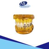 ブラケットの歯科矯正学の金属を縛っているDamon歯科矯正学の受動のSystmの自己は熱い熱いかっこに入れる