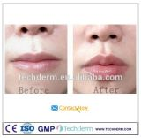 Remplissage cutané d'acide hyaluronique de Sofiderm pour l'agrandissement de languettes