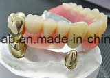 Protesi dentarie parziali fuse metallo smontabile del telescopio fatte nel laboratorio dentale della Cina