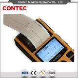 CE&FDA de handbediende Monitor van de Elektrocardiograaf ECG van het Enige Kanaal