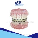 El uno mismo que liga el metal acorcheta los corchetes del metal de la ortodoncia con alta calidad