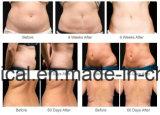 La réduction des graisses Cryolipolysis et le corps machine minceur