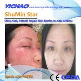 Shumin Star el tratamiento de dermatitis Facial temporada