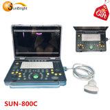 LED de 15 pulgadas portátil de ultrasonido digital completo Sol-800c