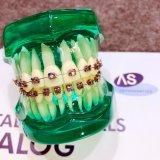 Tubi orali o parentesi del metallo convertibile ortodontico dentale
