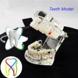 復元及び橋歯を搭載する歯科インプラントモデル歯科インプラントの病気の歯モデル