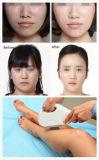 Tre maniglie Shr scelgono strumentazione di bellezza di rimozione dei capelli di cura di pelle