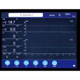 S6100A de Machine Goede Performance&#160 van de anesthesie; in de Eenheden van de Intensive care