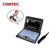 De cms600p2-Dierenarts van Contec de Draagbare Veterinaire Apparatuur van de Scanner van de Ultrasone klank