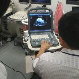 Scanner portatif d'échographie-Doppler de couleur de Sonoscape S2 3D 4D