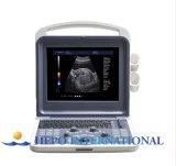 セリウムの医学の製品とのカラードップラー携帯用デジタル超音波