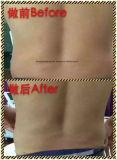 Carrocería portable de Ultrashape que adelgaza la máquina