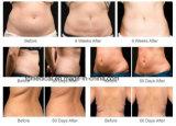 Het Bevriezen van Cryolipolysis de Machine van het Vermageringsdieet voor Vet of Vermindering Cellulite