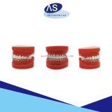 Niti geöffnete Schraubenfeder-Cer FDA-ISO-orthodontisches Produkt